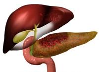 آشنایی با توصیههایی برای درمان پانکراتیت (التهاب لوزالمعده)