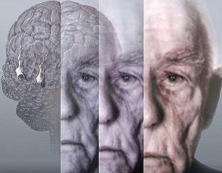 dementia-rising-costs