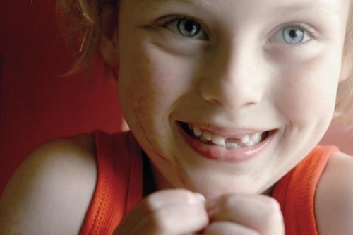 دختر - دندان