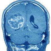 برش مغز