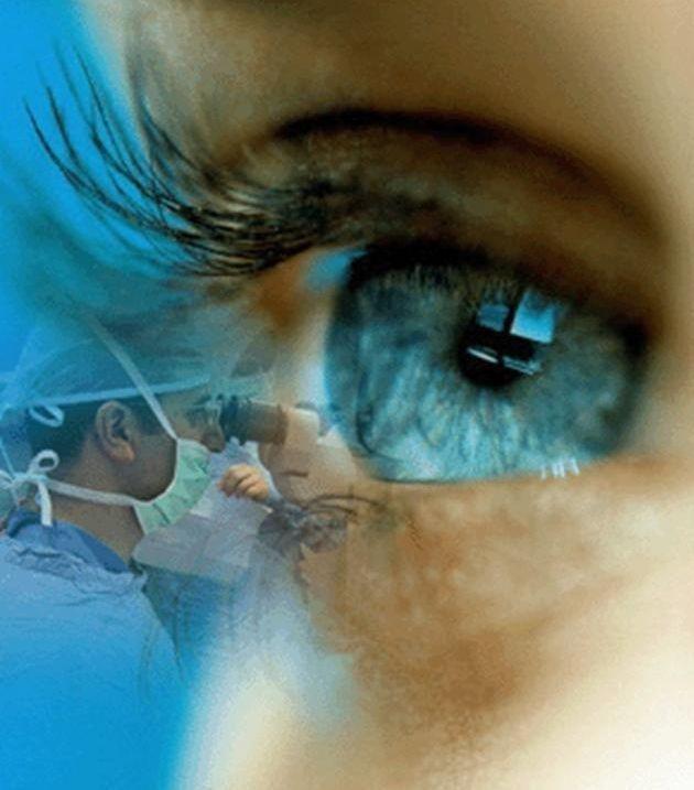 تکنیک جدید جراحی لیزری برای تغییر رنگ چشم