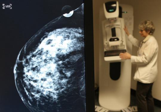 سازمان غذا و داروی آمریکا ماموگرافی سهبعدی را تایید کرد
