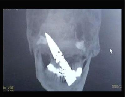 Knife in Skull