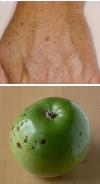 درمان لکههای قهوهای پوست