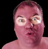 بهبود آفتابسوختگی