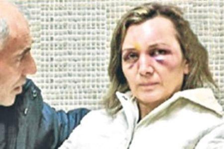 خشونت زنان در ترکیه
