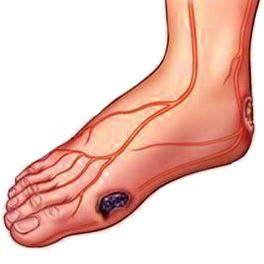 درمان زخم پای دیابتی با سلولهای بنیادی