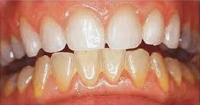چطور دندانهایی سفید داشته باشیم؟