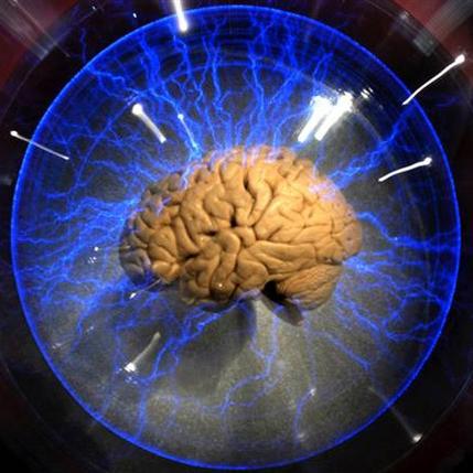 مغز انسان- بهره هوشی