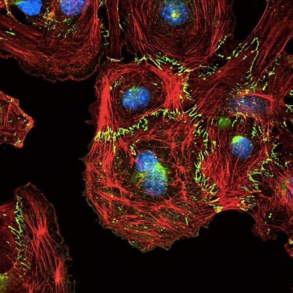 وقتی سلولها به یکدیگر دوخته میشوند