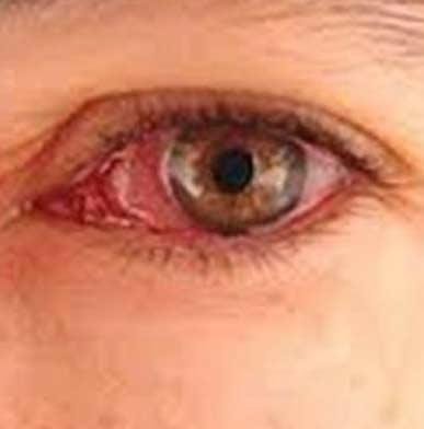 استعمال دخانیات، عوارض چشمی بیماری تیروئید را تشدید میکند