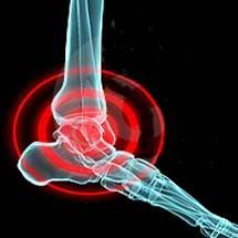 عفونتهای پروتز ذر پیوند مفصل