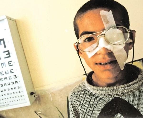 تازهترین راههای درمان تنبلی چشم
