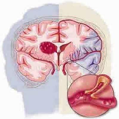 روشی تازه برای جلوگیری از وقوع سکته مغزی