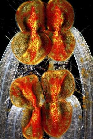 برترین تصاویر میکروسکوپی سال 2012 را ببینید