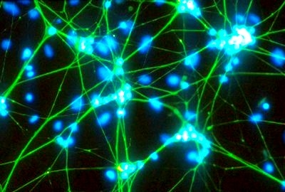 عصب پایه