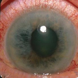 درمان آب سیاه با سلولهای بنیادی چشم