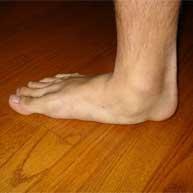 مفاهیم: صافی کف پا چیست؟