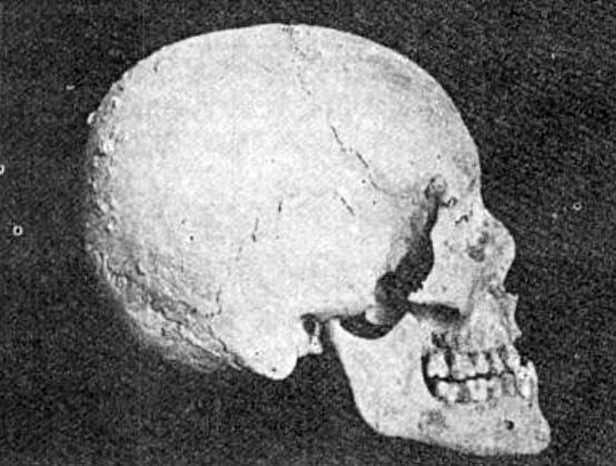 تصاویری از جمجمه و سنگ قبر قدیمی بوعلی سینا