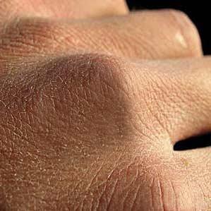 میکروبهای پوست، حافظ بدن در برابر عفونت