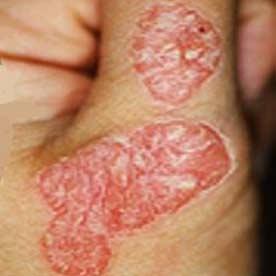 اختلال در سیستم ایمنی بدن، عامل بیماری پسوریازیس