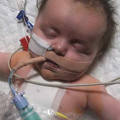 کودکی که نصف قلب داشت، یک ساله شد