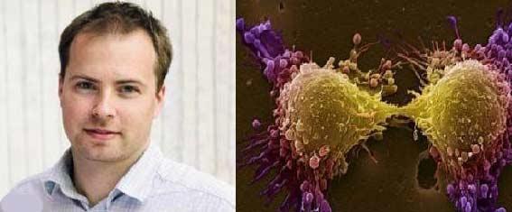 تشخیص زودهنگام سرطان بیضه