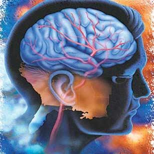 درمان سکته مغزی با سلولهای بنیادی