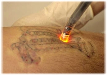 tatoo removal