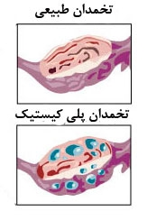مقایسه تخمدان طبیعی و تخمدان پلی کیستیک