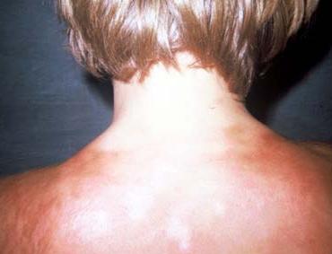 مفاهیم: بیماری اسکلرودرمی چیست؟