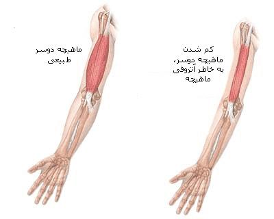 تحلیل عضلات در بیماری آتروفی