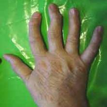 سرنخهای ژنتیکی درمان آرتروز