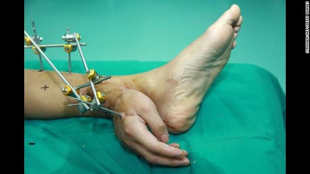 جراحی عجیب برای نجات دست قطع شده