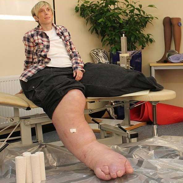 بیماری نادری که رشد پاها متوقف نمیشود