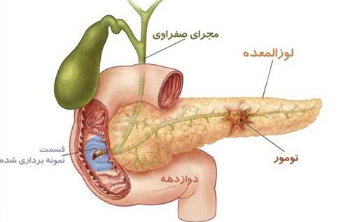 مفاهیم: سرطان لوزالمعده (پانکراس)