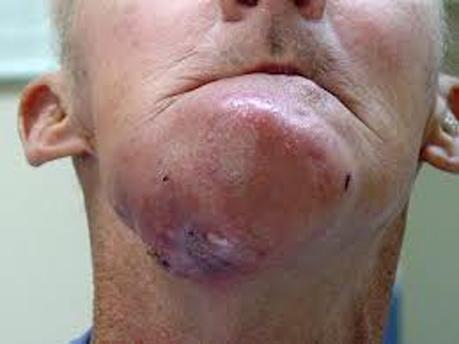 مفاهیم: سرطان دهان چیست؟