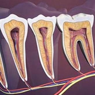 زونا را با دندان درد اشتباه نگیرید