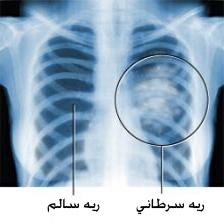 مفاهیم: سرطان ریه چیست؟