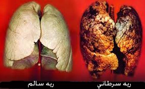 مقایسه وضعیت ریه سالم و سرطانی