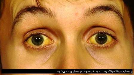 در بیماری یرقان،رنگ پوست وسفیده چشم بیمار زرد میشود