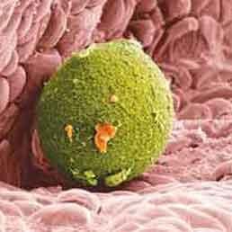 مفاهیم: سرطان کبد چیست؟