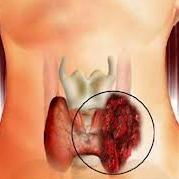 سرطان حنجره چیست؟