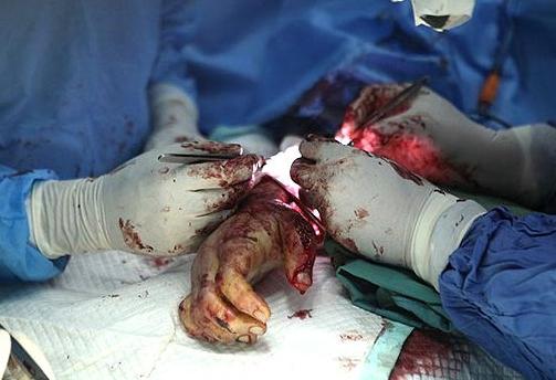 دست پیوند زده