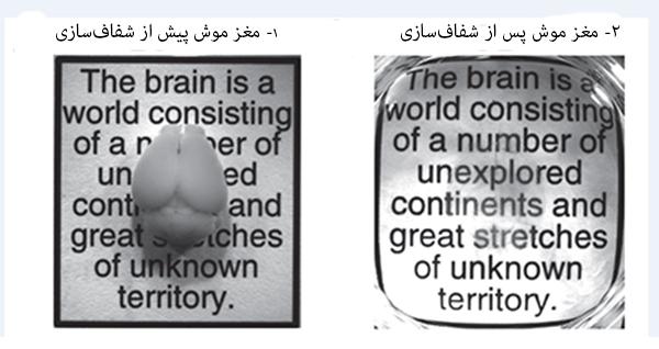 transparent brain 2