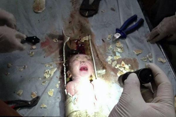 چین؛ عکسهای نجات معجزهآسای پسر دو روزه از لوله فاضلاب