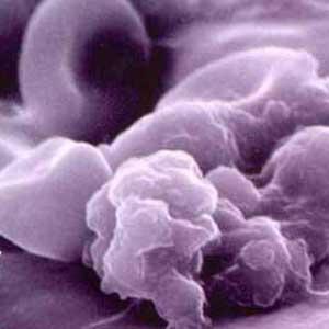 مفاهیم: سرطان مثانه چیست؟