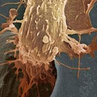 مفاهیم: سرطان تخمدان چیست؟