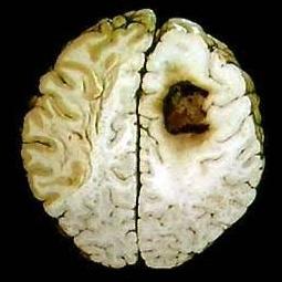 مفاهیم: سرطان مغز چیست؟