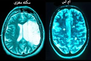 [تصویر:  princ_rm_photo_of_damaged_brains.jpg]